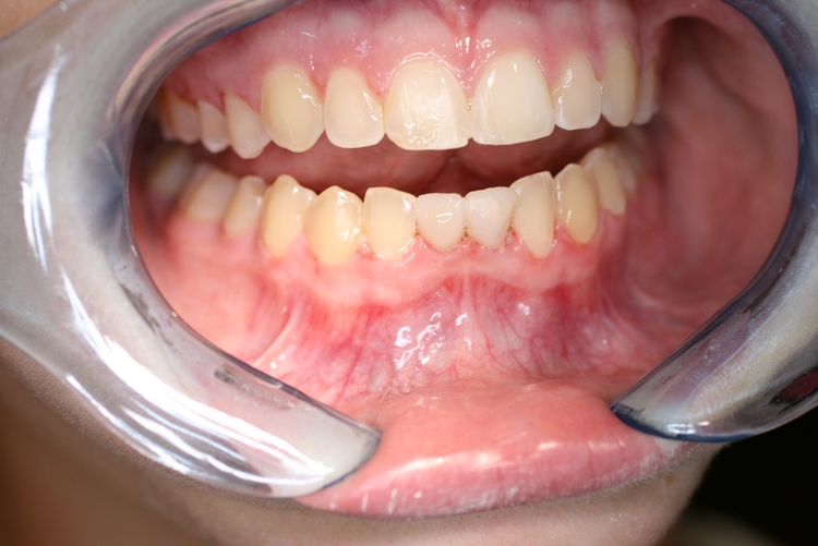teeth_pics_007.JPG