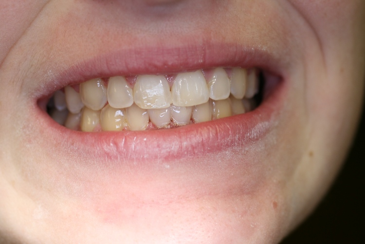 teeth_pics_008.JPG