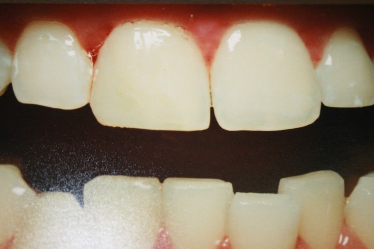 teeth_pics_011.JPG