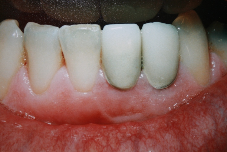 teeth_pics_010.JPG